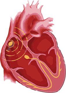 psoriasis heart arrhythmia