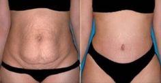 Užívajte toto iba raz denne a o 20 dní bude váš brušný tuk fuč! - Mega chudnutie