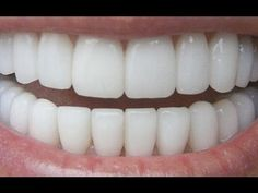 How To Have Natural White Teeth in 3 minutes - Video tutorial