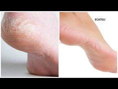 ConsejosdeSalud.info: Adiós a eso molestos y feos callos de los pies con este sorprendente remedio natural