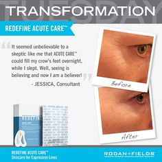 Are you curious about botox but can't stand the thought of needles? Well, I have a solution for you! Our acute care product has the same effect as botox without needles. Try it now and see you amazing results soon!