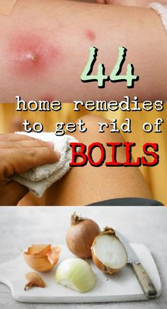 44 Simple and Effective Home Remedies to Get Rid of Boil