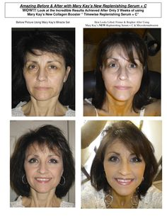 Amazing Before & After with Mary Kay's TimeWise: Replenishing Serum +C and Mary Kay's TimeWise: Microdermabrasion. http://www.marykay.com/en-US/Gifts/TimeWise-Replenishing-Serum+C-/100744.partId?eCatId=10686 http://www.marykay.com/en-US/Skin-Care/TimeWise-Microdermabrasion-Step-1-Refine/100724.partId?eCatId=10026