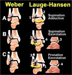 The Radiology Assistant : Ankle fracture - Weber and Lauge-Hansen Classification Avulsion Fracture, Ankle Fracture, Radiology Student, Radiology Imaging, Anatomy Of The Knee, Medical Textbooks, Ankle Surgery, Human Anatomy And Physiology, Body Therapy