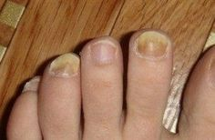 So I got rid of the fungal infection in 9 days: a simple and effective m … - Hausmittel Nail Design Rosa, Infection Fongique, Finger, Snoring Remedies, Cold Cream, Nail Fungus, Beauty Review, Tea Tree Oil, Feet Care