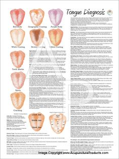 Chinese Medicine Tongue Diagnosis Poster