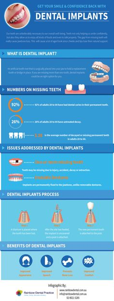"""Newest Absolutely Free dental implants facts Ideas When told by the Academy with Typical Dental treatments, an oral embed is actually a man-made the teeth """"ac Implants Dentaires, Dental Implants, Dental Hygienist, Dental Assistant, Dental Health, Oral Health, Dental Posters, Smile Dental, Free Dental"""