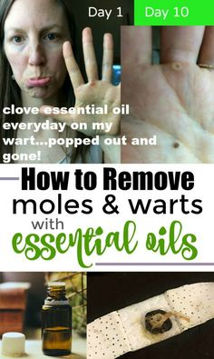 51 Ideas How To Remove Warts With Essential Oils Young Living For 2019 Clove Essential Oil, Essential Oils For Skin, Essential Oil Uses, Young Living Essential Oils, All You Need Is, Get Rid Of Warts, Remove Warts, Remove Stains, Essential Oils