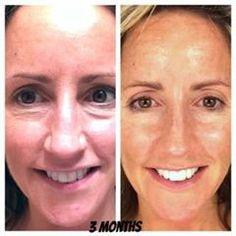 Rejuvenating Serum....real people, real results!!! https://www.facebook.com/jeunessejulzentrev?ref=bookmarks