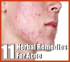 Homemade Acne Remedies - 5 All Natural Acne Home Remedies -- Click on the image for additional details. #AcneRemedies