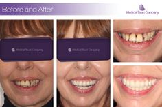 Implants and crowns Teeth In A Day, Dental Crowns, Dental Implants, Health And Wellbeing, Medical, Medical Doctor, Medicine, Med School, Medical Technology