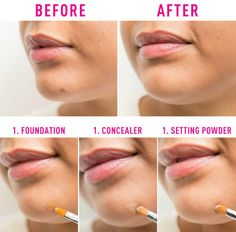 Don't rely solely on concealer to cover those scars. #makeuptips #beautyhacks