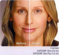 Gesichts plastische Chirurgie Hollywood Florida Florida