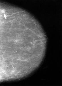 Nearly 1 in 4 Women Newly Diagnosed with Breast Cancer Report PTSD Symptoms - A new study reports almost a quarter of women newly diagnosed with breast cancer experienced symptoms associated with PTSD shortly after their diagnosis. The image shows a mammogram with a small, cancerous lesion and calcific deposits in veins. More at NeuroscienceNews.com.