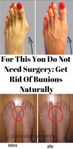 For This You Do Not Need Surgery: Get Rid Of Bunions Naturally