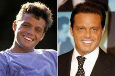 El antes y el después de la estética dental. #laimportanciadelasonrisa @clinicadiamond www.clinicadiamond.com