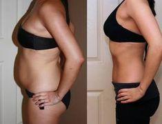 Η τέλεια δίαιτα για να χάσεις μόνο λίπος σε 2 εβδομάδες! Αναλυτικό πρόγραμμα διατροφής…   You & Me by Stamatina Tsimtsili Bikinis, Swimwear, Thong Bikini, Diet To Lose Weight, Weights, Health, Healthy Eating, Bathing Suits, Swimsuits