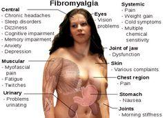Fibromialgia: sintomi, cause, cura e tenderpoints