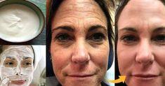 Táto pleťová maska vyhladí aj tie najhlbšie vrásky! – Báječné Ženy