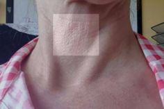 neck grids 2 months