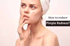 5 Incredible Ideas for How to Reduce Pimple Redness Naturally – Braids Reduce Pimple Redness, How To Reduce Pimples, Pimple Marks, Natural Wart Remedies, Home Remedies For Acne, Ingrown Toenail Remedies, Homemade Pore Strips, Hair Dye Removal, Under Eye Wrinkles