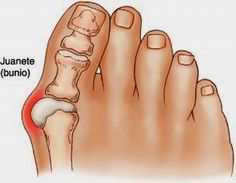 A bunion is when your big toe points toward the second toe. This causes a bump on the inside edge of your toe. BraceAbility offers several bunion correctors at wholesale prices. Herbal Remedies, Home Remedies, Natural Remedies, Health Remedies, Health And Beauty, Health And Wellness, Health Tips, Get Rid Of Bunions, Feet Care