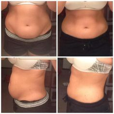 Before and after; real results!  We have helped people loose more than 28 inches in 1 month! Create a New Body Spa