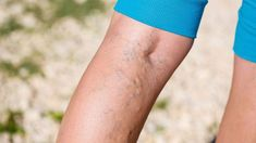 9 Best Essential Oils for Varicose Veins (With Massage Recipes and More)