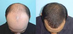 Saç Çıkarmak İçin Bitkisel Çözüm