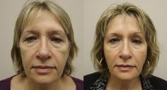 Get Rid Of Saggy Face Skin And Face Wrinkles With Face Renewal Gymnastics