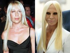 Donatella Versace before and after plastic surgery Read more about celebrities Plastic Surgery News at https://plentat.com/category/plastic-surgery/ #celebrities #celebrity #celebritystyle #celebritynews #celebrityinsider #kimkardashianplasticsurgery #kimkardashian #plasticsurgery #beforeandAfter #DonatellaVersace