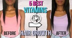Today we are giving you 5 of the best vitamins for hair growth. Each of the vitamins has a job in achieving long hair. Best Hair Growth Supplements, Best Hair Growth Vitamins, Healthy Hair Growth, Hair Growth Pills, Biotin Hair Growth, Hair Growing Tips, Help Hair Grow, Grow Natural Hair Faster, Regrow Hair