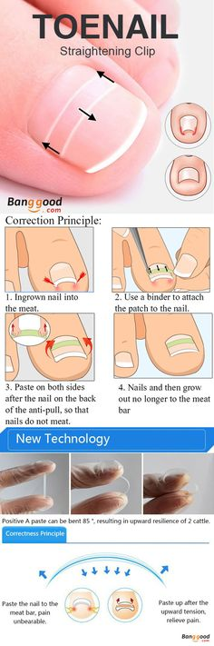 US$4.49+Free shipping. Toenail Straightening, Ingrown Toenail Straightening Clip Curved BS Brace Toenails Thick Paronychia Correction Tool.
