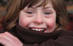 Un fotógrafo de Moda se Centra en las Personas con Enfermedades Genéticas para Replantear la Belleza http://www.sitioviral.com/enfermedades-geneticas/