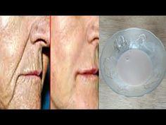 Dovedit 100%, cum să albiți fața și să eliminați ridurile într o singură noapte - YouTube Youtube, Medicine, Varicose Veins, Youtubers, Youtube Movies