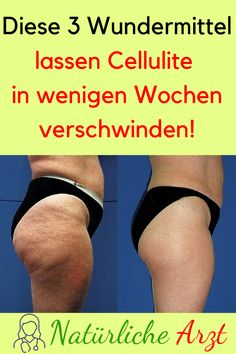 These 3 miracle cures will make cellulite disappear in a few weeks! #Cellulite ...#cellulite #cures #disappear #miracle #weeks
