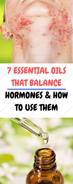 Hormonal imbalances are common in both men and women. These come accompanied with severe symptoms such as fatigue, mood swings, obesity, fertility issues, depression and insomnia. Health And Fitness Expo, Health And Wellness Center, Health And Fitness Articles, Health And Wellbeing, Health And Nutrition, Health And Beauty Tips, Health Tips, Women's Health, 30 Minute Ab Workout