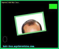 Tegretol And Hair Loss 234843 - Hair Loss Cure!