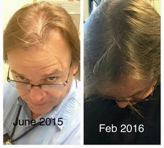 Men, you don't have to lose your hair. In many cases, you simply need to make your scalp healthier, strengthen your follicles and Monat does that while promoting new hair growth! Check out these results! You can get your own too. It's safe, no side effects and you get a guarantee.  www.hairbydrea.mymonat.com