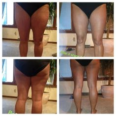 Lets get your legs SUMMER SEXY look no further than the It Works skinny wrap www.louannWrapsYouSkinny.com  https://www.facebook.com/LouannWrapsYouSkinny #legs #thighs #summer #beach