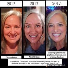 A few minutes a day and consistent use of the right products in the right order is all it takes for these results. Are you ready?