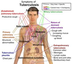 March 24th is World Tuberculosis Day. Go to http://healthaware.org/category/2012/15-march-2012/ for link to more information.*