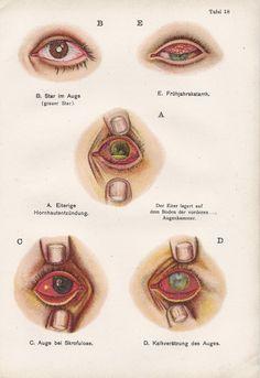 Vintage German Medical Illustration, 1920s, Cataract/Eye Disease. $10.00, via Etsy. Eye Illustration, Medical Illustration, Star Wars, 1920s, German, Sweet Butter, Vintage Medical, Eyes, Art