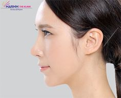 If you are thinking to get the nose job surgery, you need an appointment with your surgeon to have an initial consultation.You may come to the Marmm Klinik for Rhinoplasty in Indore Indore, Nose Structure, Nose Reshaping, General Anaesthesia, Rhinoplasty, Medical Conditions, Plastic Surgery, Recovery, Purpose