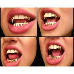 Dentaltown - Does your dental office provide Next Level Extreme Makeover Cosmetic Dentistry Services? Fang Grillz, Girl Grillz, Gold Fangs, Gold Teeth, Diamond Grillz, Grillz Gold, Diamond Teeth, Gangsta Grillz, Tooth Gem