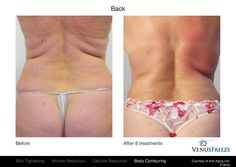 Venus Freeze™ provides comfortable anti-aging treatments that diminish wrinkles and improve the look of sagging skin with no surgery or downtime. Scar Treatment, Anti Aging Treatments, Skin Treatments, Before And After Contouring, Skin Resurfacing, Sagging Skin, Body Contouring, Healthy Skin