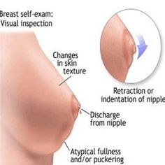 breast soreness and pregnancy