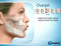 Do I Need Braces? Watch this video to learn a bit more about orthodontics and see if you need braces. Dr. Taylor Olsen at Olsen Orthodontics can help give you a beautiful smile! www.ocbraces.com