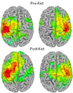 Scanned brain images with response areas highlighted. Biomarkers help pinpoint mechanisms predict outcomes--NIH bipolar studies.