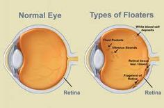 Small moving spots that appear in your field of vision are called Eye Floaters. They are noticeable when looked at something bright. Most of the time people ignore them and often improve over months to years. But sometimes eye floaters are a sign of a more serious condition. Seek immediate medical attention if you notice a sudden increase in the number of eye floaters